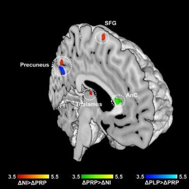 Neuroimaging-Studie - Hirnregionen_1