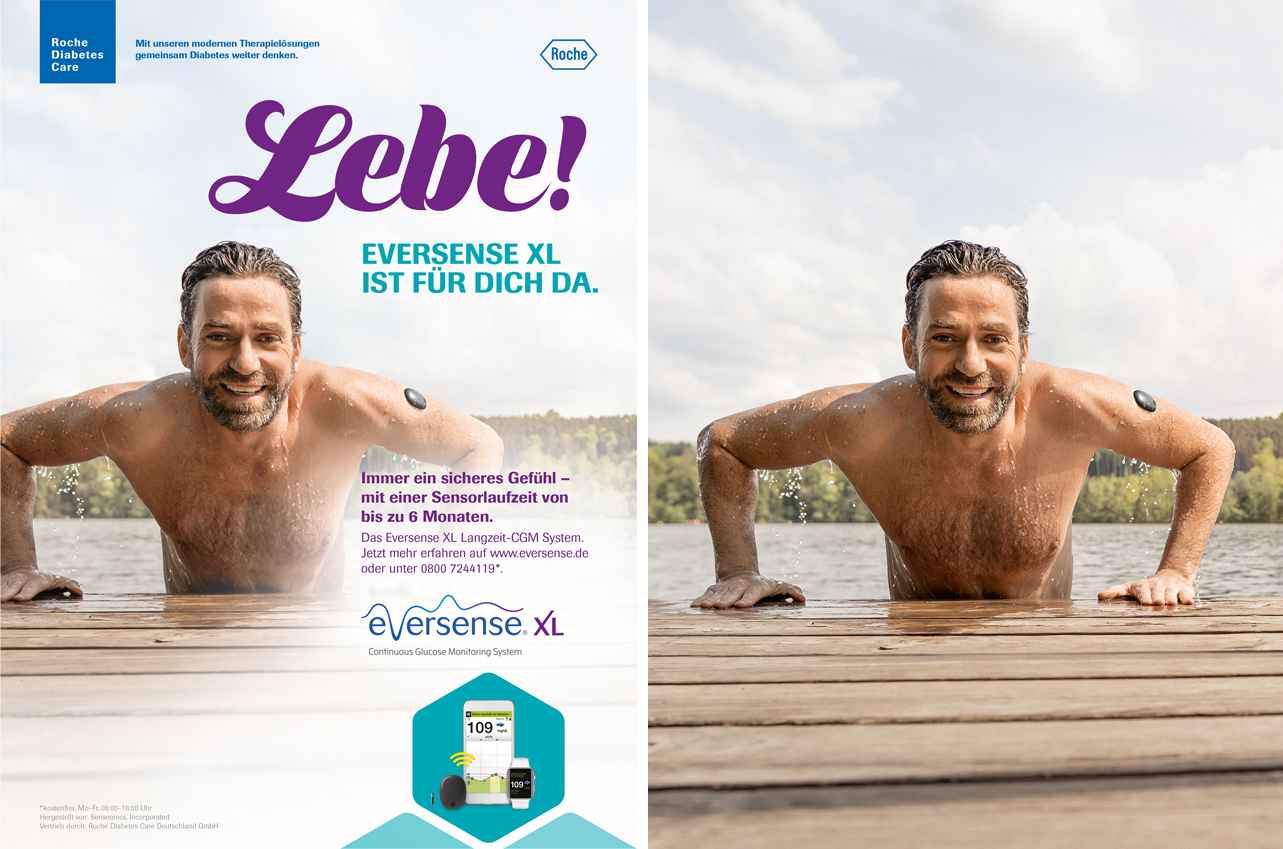 roche-diabetes-care-eversense-xl-1